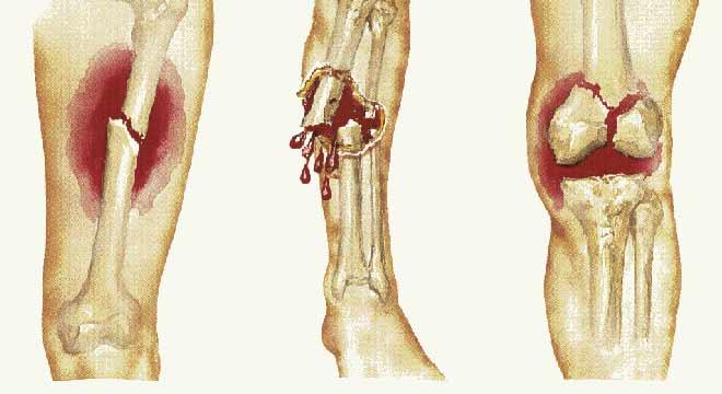شکستگی باز و شکستگی بسته دقیقا چه معنایی دارند. تقسیم بندی