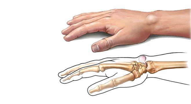 گانگلیون مهمترین علت برجستگی پشت مچ دست چگونه درمان میشود