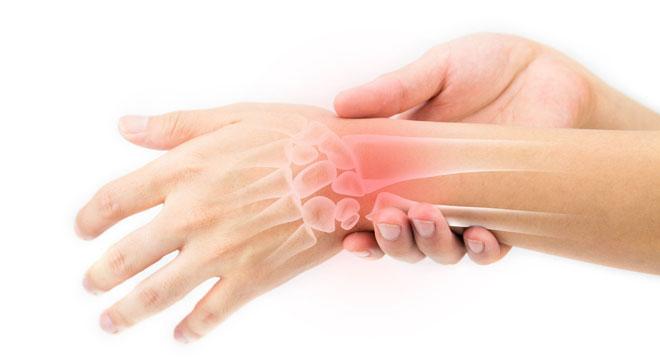 بیماری کین باخ یا نکروز استخوان لونیت در مچ دست چیست