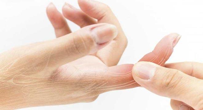 شکستگی انگشت دست. علائم و درمان