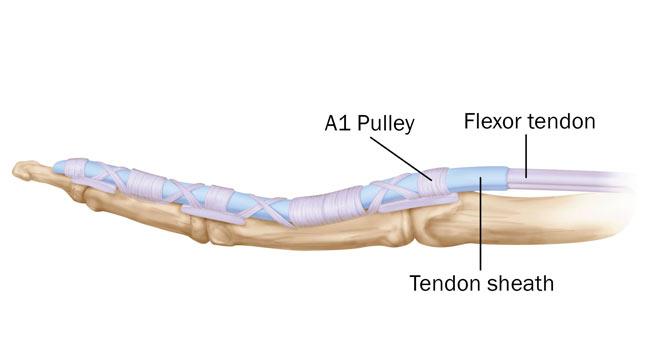 تشخیص و درمان پارگی تاندون دست چیست
