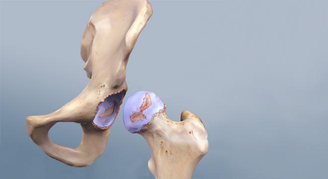 سائیدگی لگن و مفصل ران