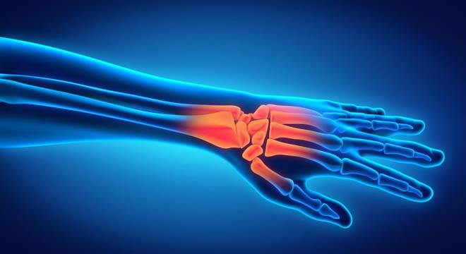 شکستگی در رفتگی بارتون در مچ دست چیست. علائم و درمان