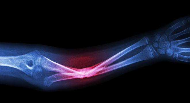 شکستگی دررفتگی مونتاجیا در ساعد چیست, علائم و درمان