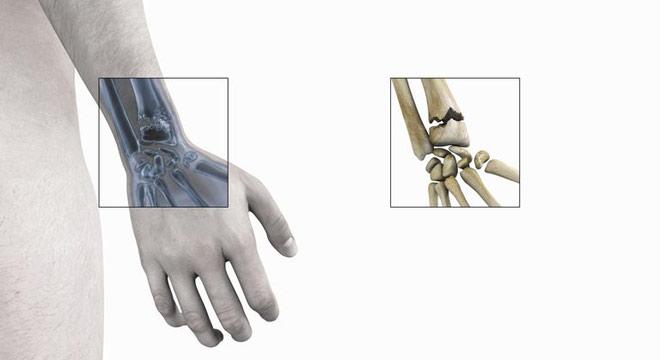 شکستگی مچ دست (اسمیت). علائم و درمان