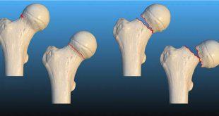 شکستگی گردن استخوان ران - لگن