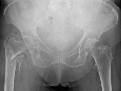 شکستگی اینترتروکانتریک با جابجایی زیاد