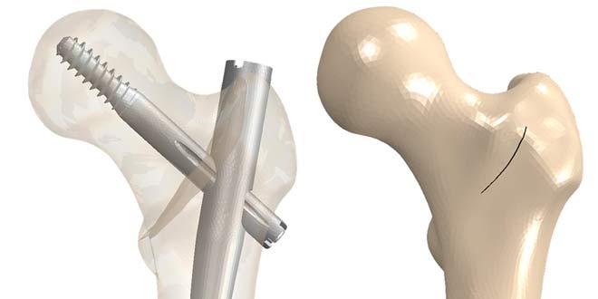 درمان جراحی شکستگی اینترتروکانتریک لگن