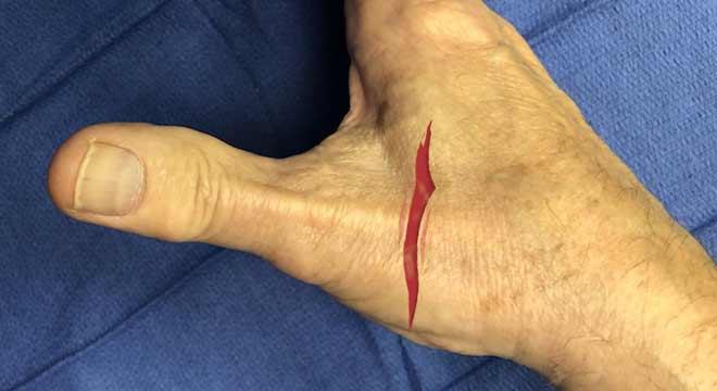 درمان بریدگی تاندون انگشت دست چگونه است