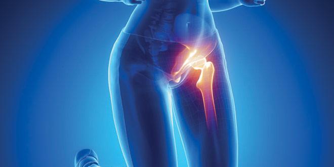 درد کشاله ران چه علت ها و درمان هایی دارد