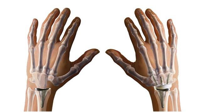 تعویض مفصل مچ دست چرا و چگونه انجام میشود