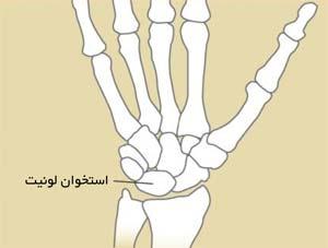 محل استخوان لونیت در مچ دست