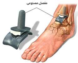 مفصل مصنوعی مچ پا