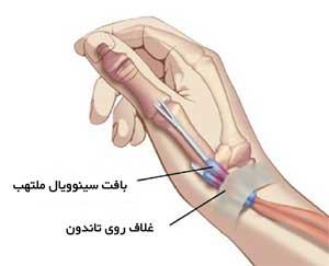 تاندون های شست در مچ دست