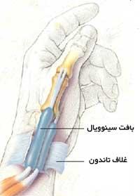 درمان جراحی بیماری دکرون