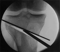 استئوتومی و باز کردن استخوان