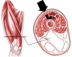 خونریزی درون عضلات چهارسر ران