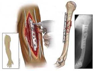 درمان جراحی شکستگی تنه بازو با پلاک