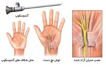 جراحی سندروم کانال مچ دستی