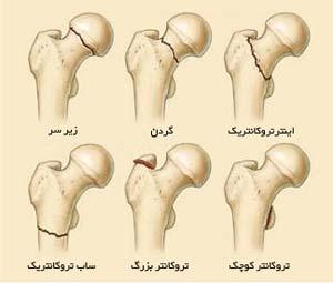 تقسیم بندی شکستگی های بالای استخوان ران در ناحیه لگن