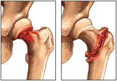 شکستگی مفصل ران یا هیپ
