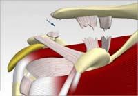 دررفتگی مفصل آکرومیوکلاویکولر