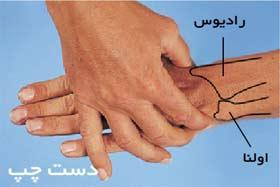 استخوان های مچ دست