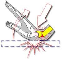مکانیسم بروز شکستگی کالیس