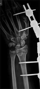 درمان شکستگی کالیس با اکسترنال فیکساتور