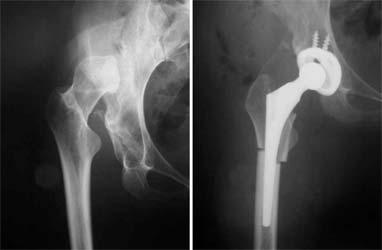 تعویض مفصل ران برای درمان در رفتگی مادرزادی مفصل ران