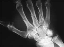 شکستگی سه استخوان متاکارپ در کف دست