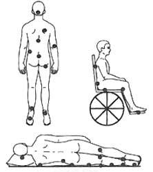 محل های تشکیل زخم فشاری