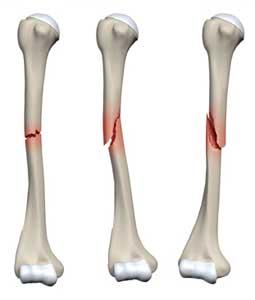 شکستگی های مایل و عرضی تنه استخوان بازو