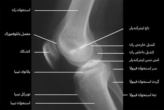 رادیوگرافی نیمرخ مفصل زانو
