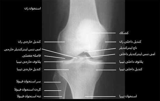 رادیوگرافی رخ مفصل زانو