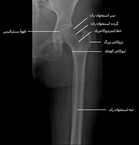 رادیوگرافی رخ قسمت های وسط و بالای ران