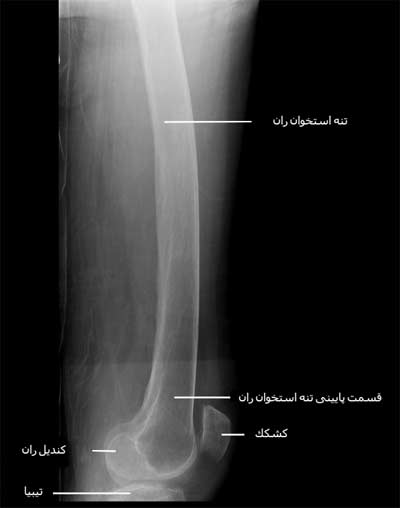 رادیوگرافی نیمرخ ران
