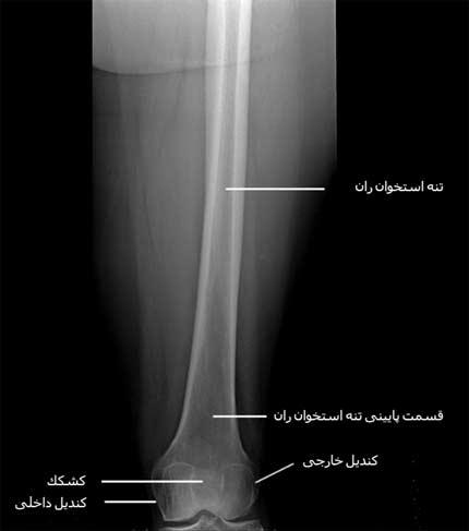 رادیوگرافی رخ قسمت های وسط و پایین ران