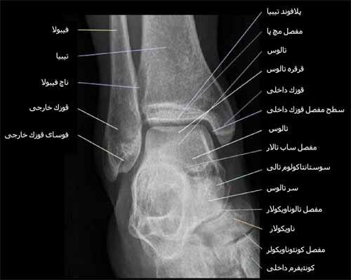 رادیوگرافی رخ یا قدامی خلفی مچ پا