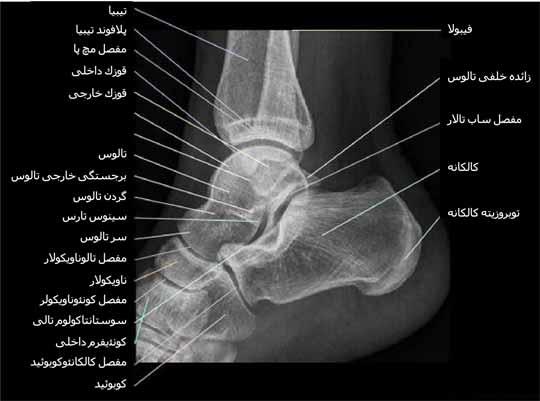 رادیوگرافی نیمرخ یا لترال مچ پا