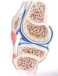 التهاب تاندون کشکک