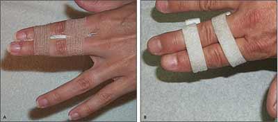 متصل کردن انگشتان به هم با نوار چسب یا Buddy taping