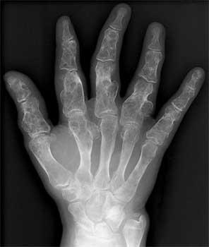 تصویر رادیولوژی کندروم متعدد
