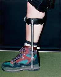 استفاده از بریس مچ پا در آرتروز