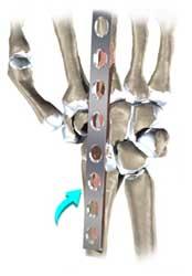 جراحی آرتروز مچ دست