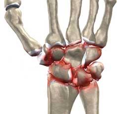 آرتروز و سائیدگی مچ دست