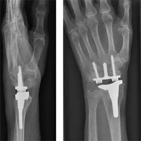 مفصل مصنوعی مچ دست
