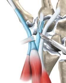 برداشتن غلاف تاندون ها در جراحی سندروم تقاطع