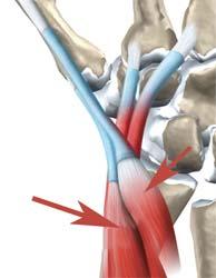 محل تقاطع عضلات در مچ دست
