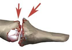 پیکان های قرمز برجستگی های استخوانی (استئوفیت) را نشان میدهد